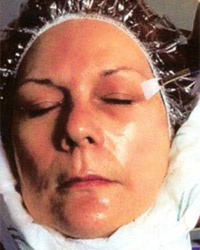 Patient during a chemical peel procedure.