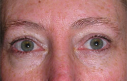 Eyebrow permanent cosmetics before photo.