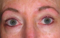 Eyebrow permanent cosmetics after photo.