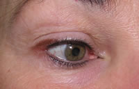 Permanent eyeliner before photo