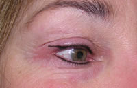 Permanent eyeliner after photo