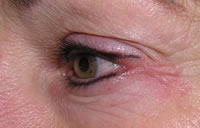 Eyeliner permanent cosmetics after photo
