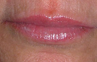 Permanent lipliner before photo