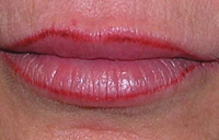 Permanent lipliner after photo.