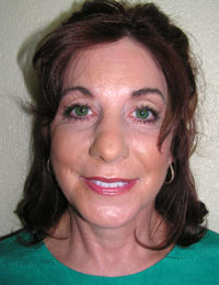 Patient after ThreadLift photo.