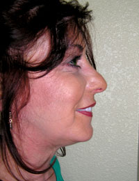 Side profile photo of a patient after ThreadLift surgery.
